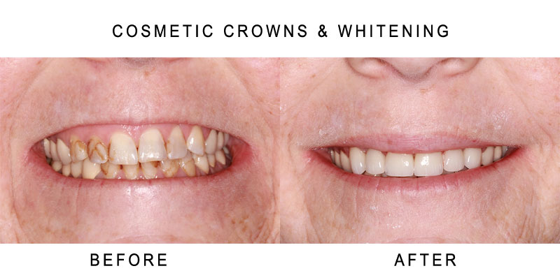 Cosmetic Crowns Before and After