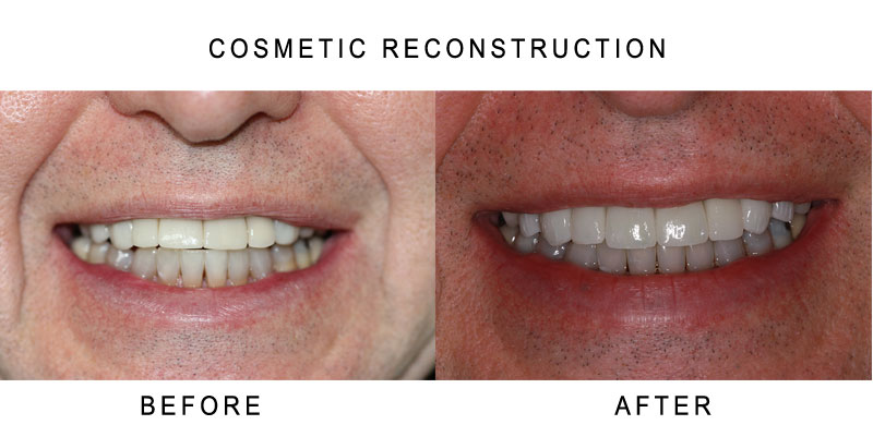 Cosmetic Reconstruction Before and After