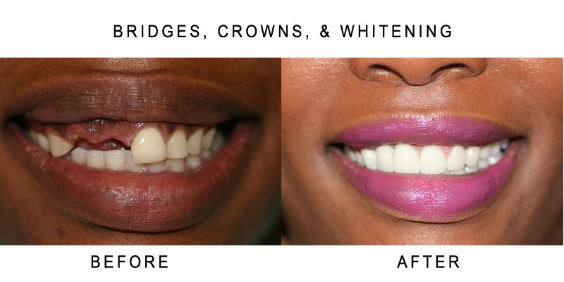 Tooth Bridges Before and After