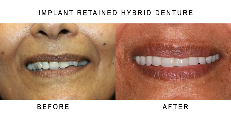 Implant Retained Hybrid Denture Before and After